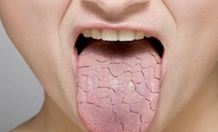 El síndrome de la boca seca, ¿cómo aliviarlo?