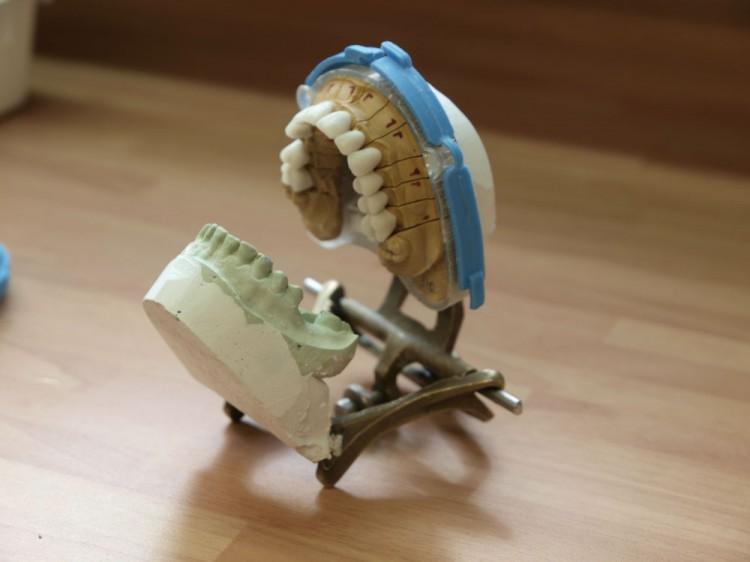 Las mejores prótesis en nuestro laboratorio propio