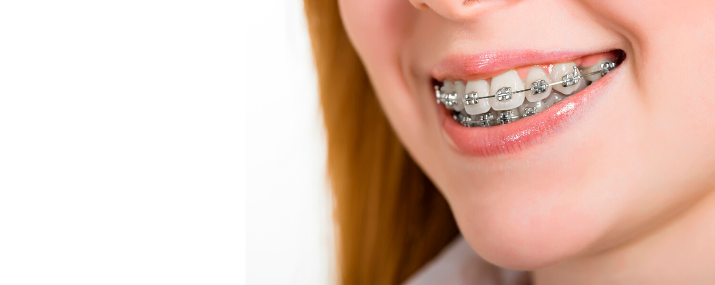 ¿Cómo cepillarte los dientes con ortodoncia?