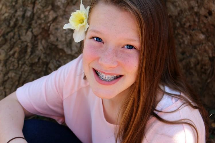 Mitos y verdades sobre los aparatos de ortodoncia