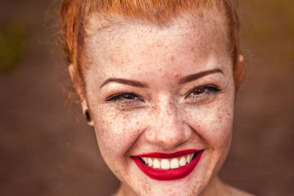 Luce sonrisa con nuestro blanqueamiento dental