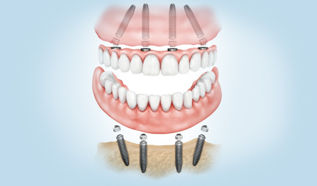 implantes dentales 1 día