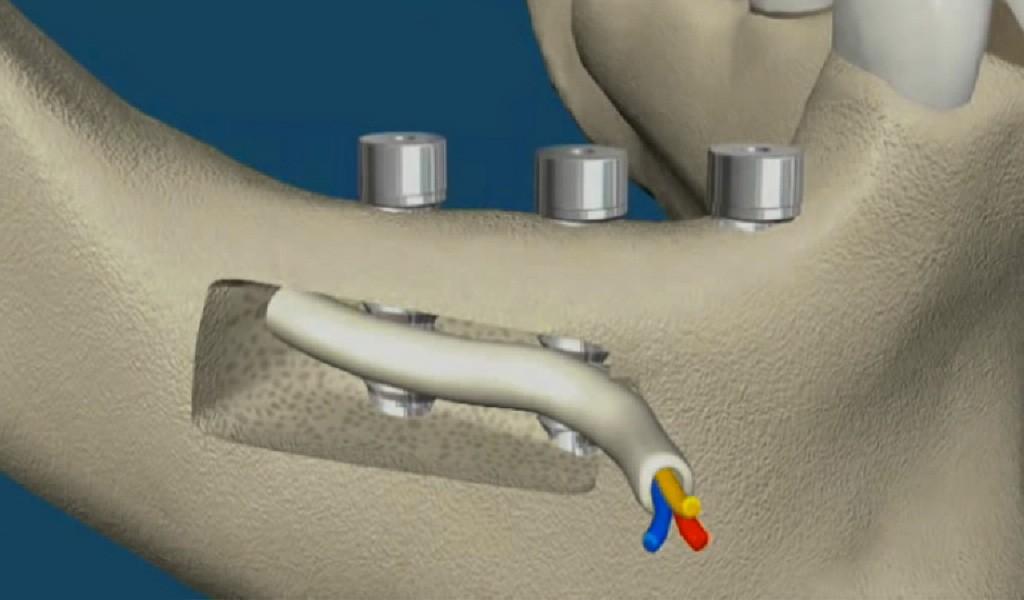 implantes dentales nervio