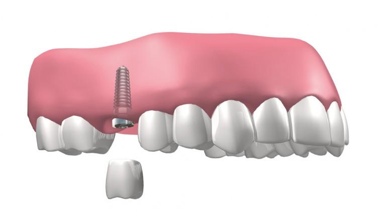 Última tecnología para implantes dentales en el Clot Barcelona