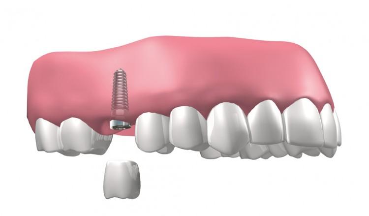 Última tecnología para implantes dentales en Mollet