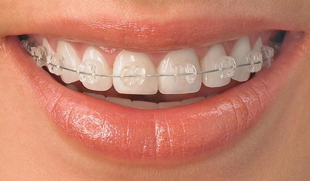ortodoncia en Sant Cugat del Vallès