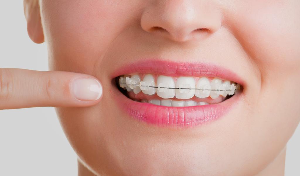 Soluciones de ortodoncia en el Clot Barcelona