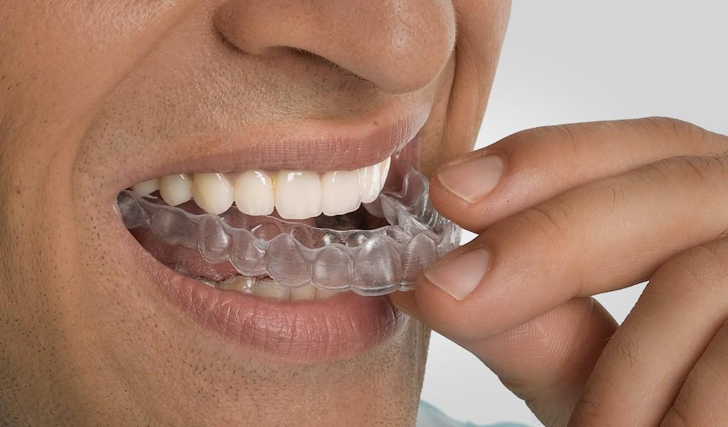 ortodoncia en el Clot Barcelona