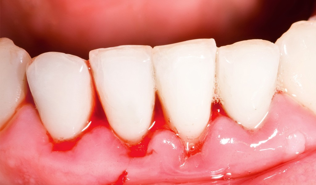 urgencias dentales el Clot Barcelona