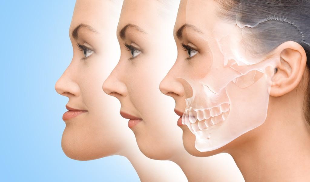 ortodoncia en Mollet