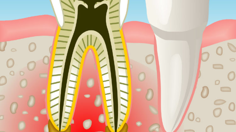 Especialistas en endodoncia en Sant Cugat