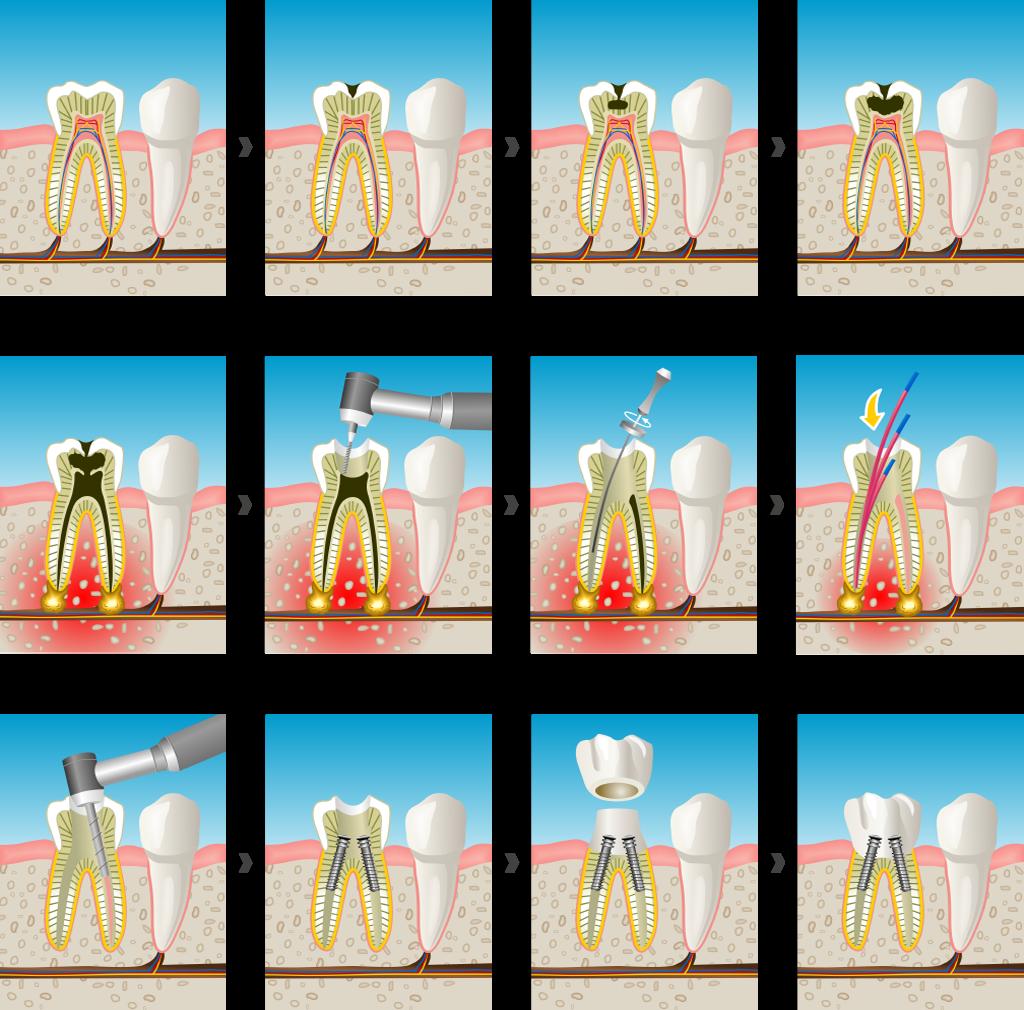 endodoncia en Sant Cugat