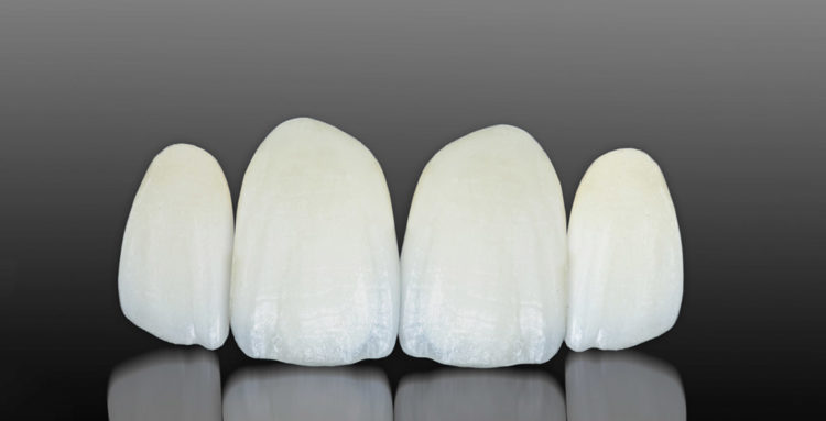 Carillas dentales sin rebajar el diente en Sant Cugat