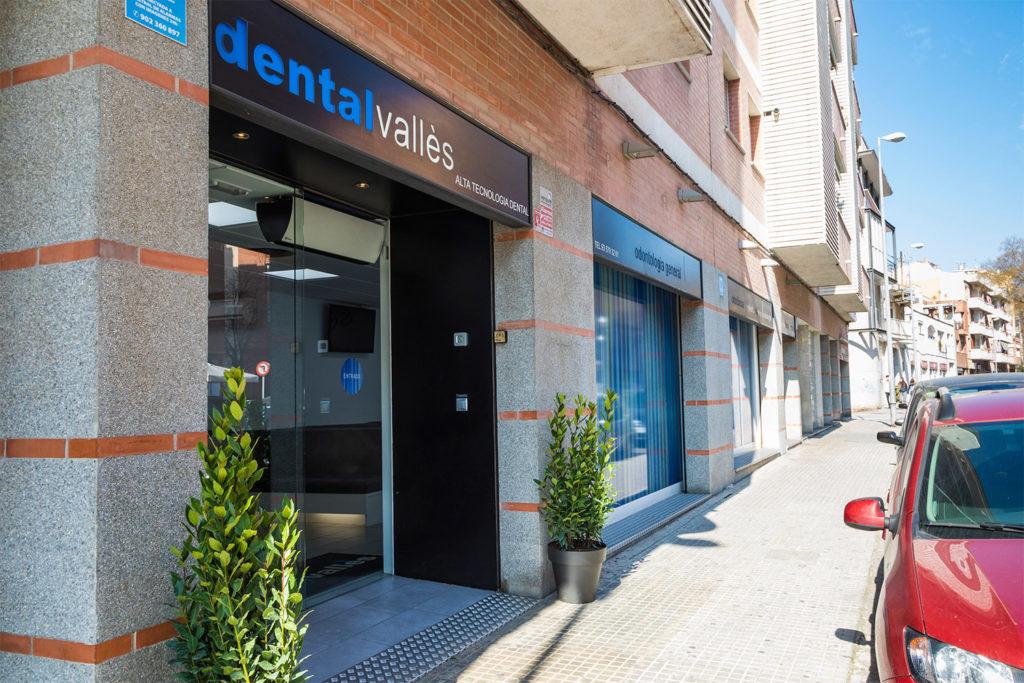 clínica dental en Mollet