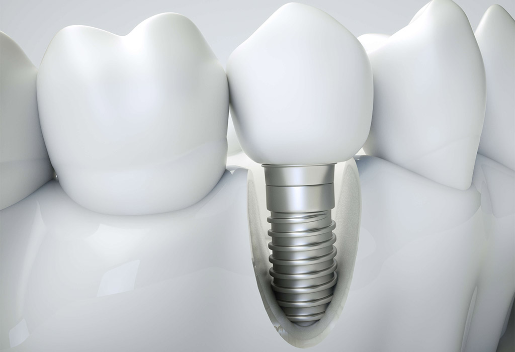Implantología dental en Sant Cugat