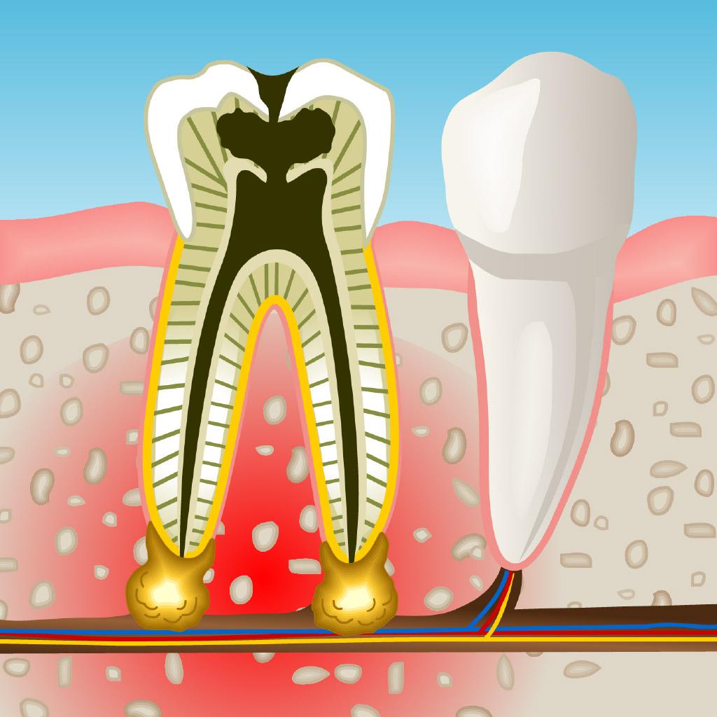 Especialistas en endodoncia en Mollet