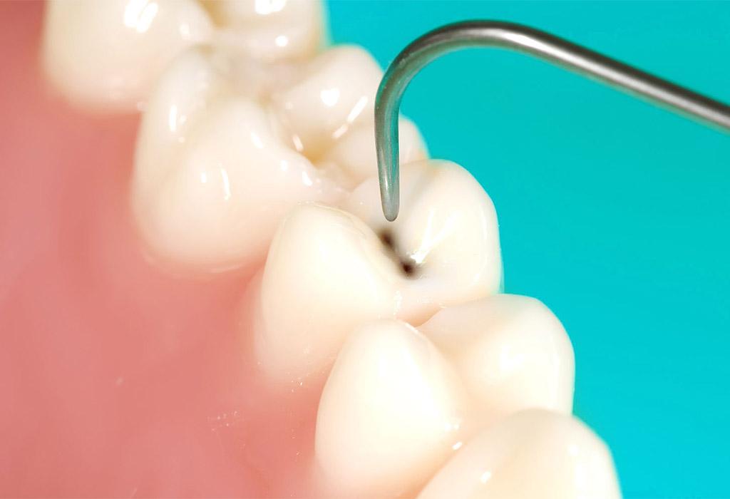 endodoncia en Mollet