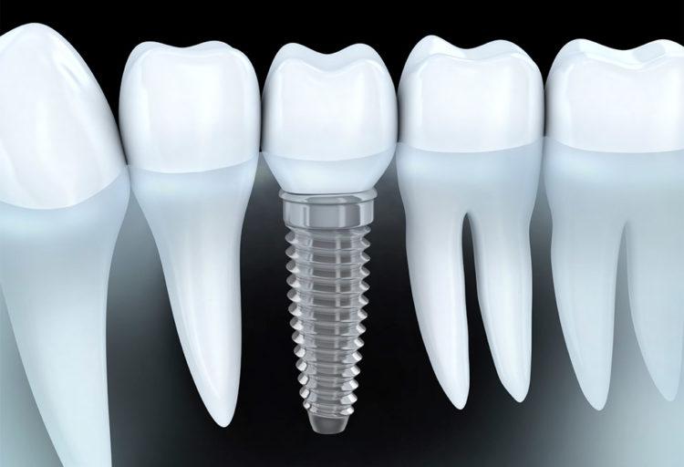 Implantología dental en Mollet