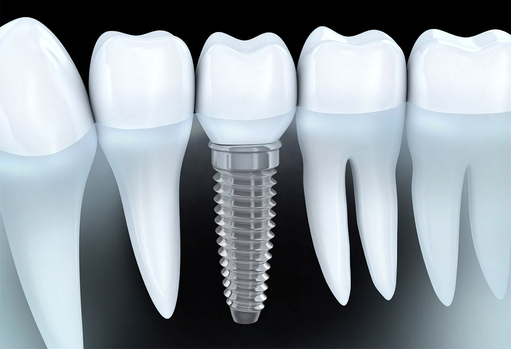 Implantología dental en Mollet
