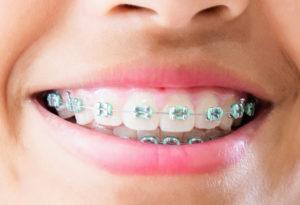 Ortodoncista en Mollet