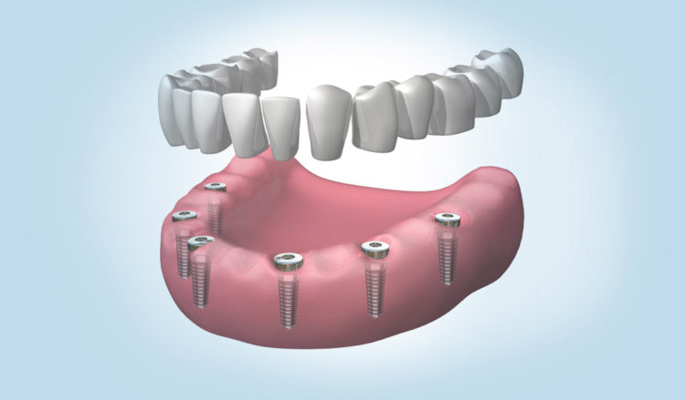Lo último en dentadura fijada con implantes dentales en Mollet del Vallès