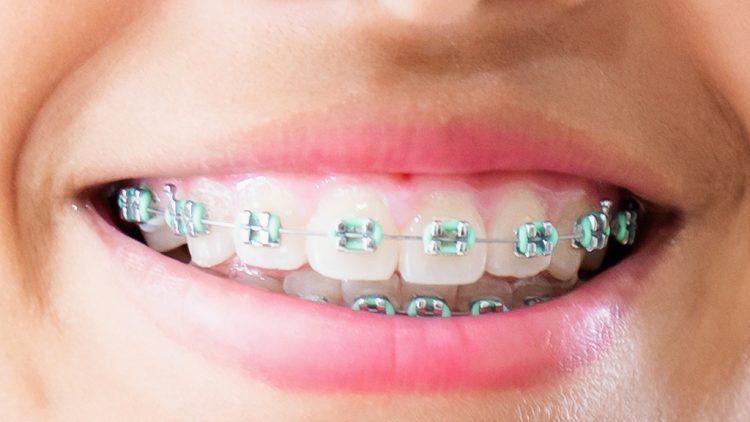 Ortodoncista en Sant Cugat