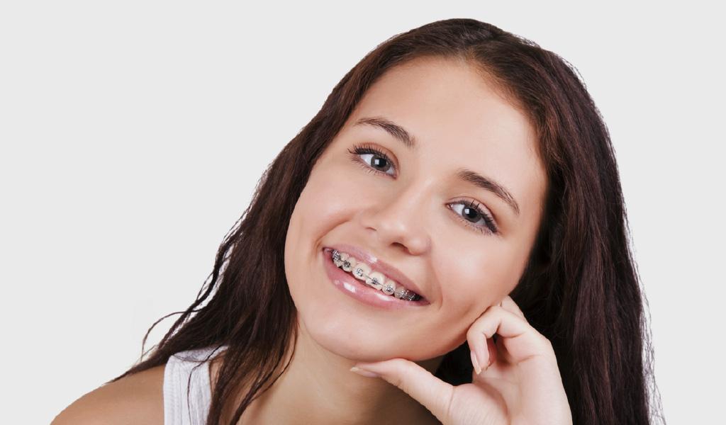 ortodoncia en Mollet del Vallès