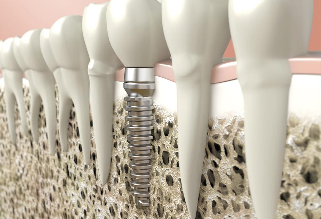 Implantes unitarios en Sant Cugat del Vallès