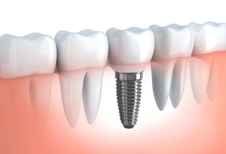 Implantes unitarios en Sant Cugat del Vallés